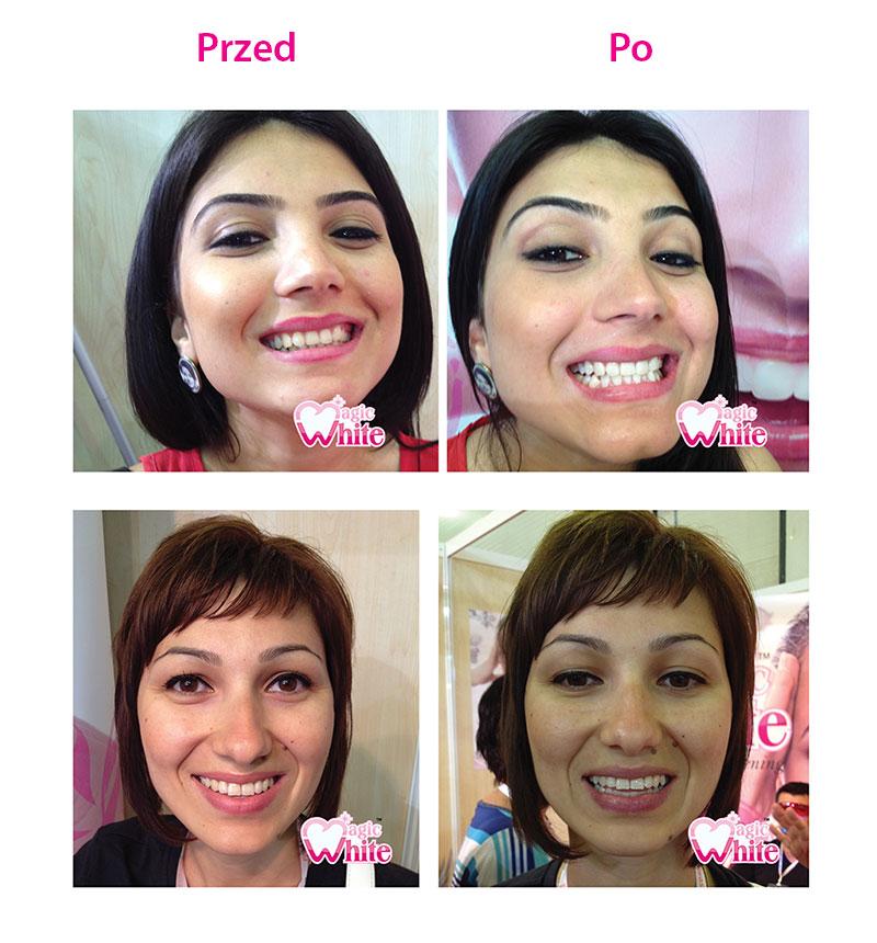 Wybielanie zębów - Salon kosmetyczny MALWA